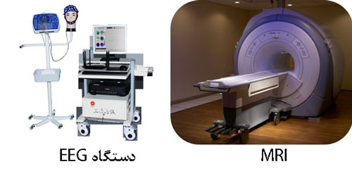 تفاوت-ام آر ای-و-EEG