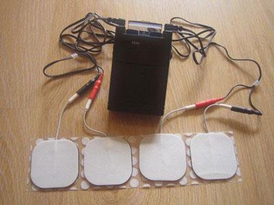 تحریک-الکتریکی