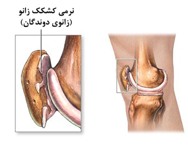 درمان-نرمی کشکک زانو
