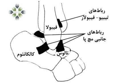 رباط های مچ پا چگونه دچار پارگی یا کشیدگی میشوند