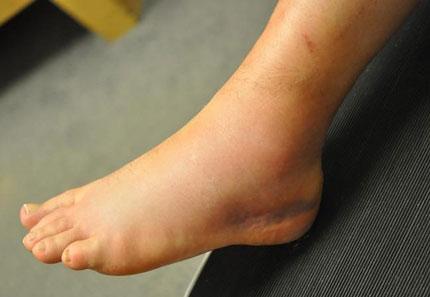 نشانه های پارگی و کشیدگی تاندون مچ پا چیست؟