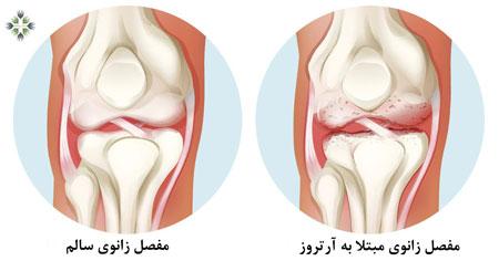 مفصل زانوی سالم چطور کار میکند