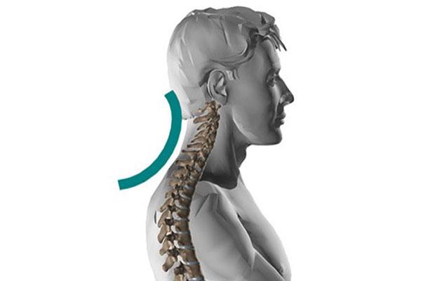 سر و گردن به جلو (قوس گردن) ناشی از چاقی و بد نشستن با فیزیوتراپی