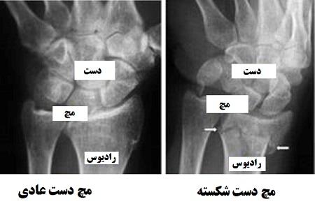 تشخیص شکستگی مچ دست