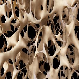 درمان-پوکی-استخوان-با-فیزیوتراپی،مگنت-تراپی-ورزش-و-تغذیه-مناسب.png