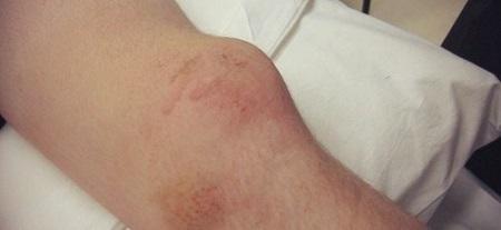 علائم و نشانههای در رفتگی کشکک زانو