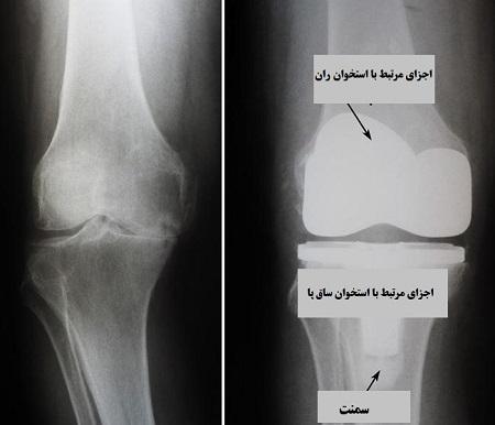 فرایند انجام جراحی تعویض مفصل زانو