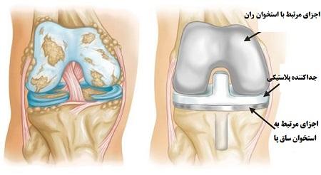 مراحل آرتروپلاستی یا تعویض مفصل زانو