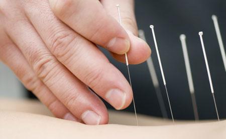 طب سوزنی چیست و چگونه کار میکند؟
