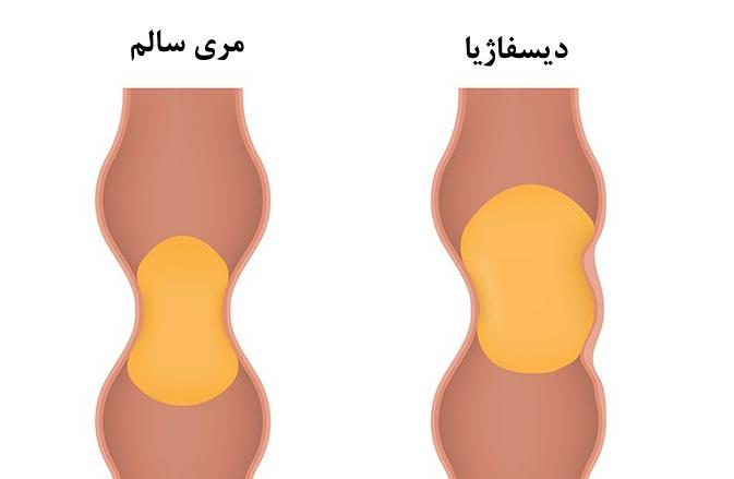 درمان اختلال بلع و مشکلات غذا خوردن در کودکان و بزرگسالان (دیسفاژیا)