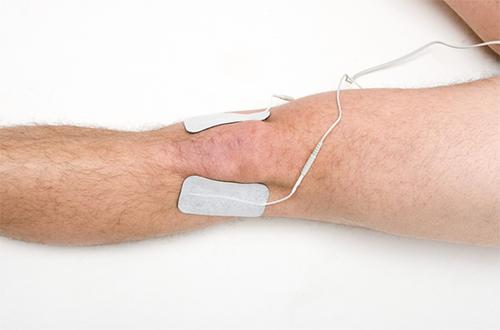 دستگاههای تحریک الکتریکی عصب