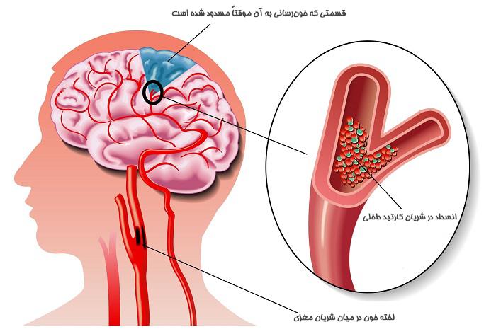 سکته مغزی چیست و چرا اتفاق میافتد؟