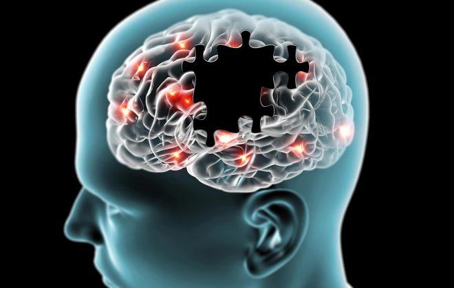 روش های درمان و کنترل آلزایمر