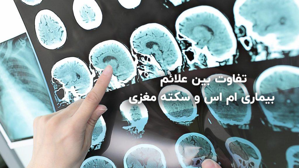 تفاوت بین ام اس و سکته مغزی